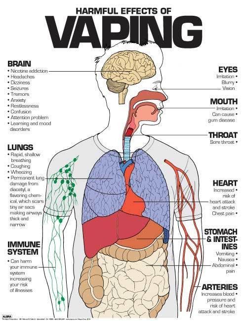 "Harmful Effects of Vaping, 24"" x 36"" Laminated Poster"