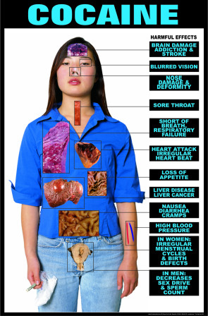 Harmful Effects of Cocaine, Laminated Poster
