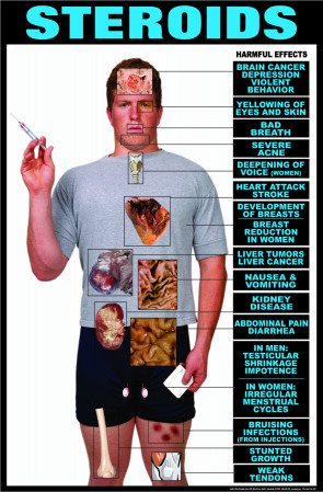 Harmful Effects of Steroids Laminated Poster