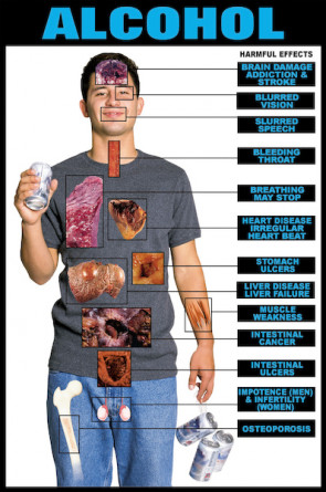 "Harmful Effects of Alcohol Chart, Laminated 24"" x 36"""