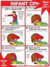 "Infant CPR Chart, Laminated 18"" x 24"""
